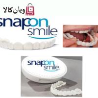 لمینت متحرک دندان snap on smile